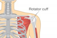 how-to-prevent-injuring-your-rotator-cuff
